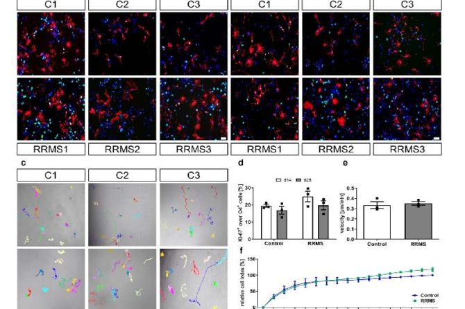 Extrinsic immune cell-derived, but not intrinsic oligodendroglial factors contribute to oligodendroglial differentiation block in multiple sclerosis